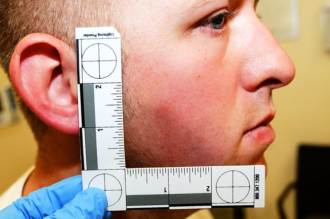 Picture of Police Officer Darren Wilson injury presented to grand jury