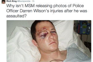 This is what Officer Wilson could have looked like if he had been hit hard with closed fists.