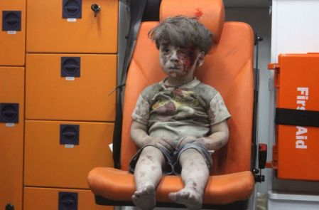 Omran Dagnees, a five year from Aleppo, Syria (getty images)